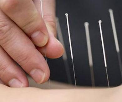 La acupuntura como terapia natural. Acupuntor cuatro caminos