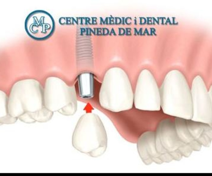 PRÓTESIS DENTAL: Tratamientos  de Centro Médico y Dental Pineda
