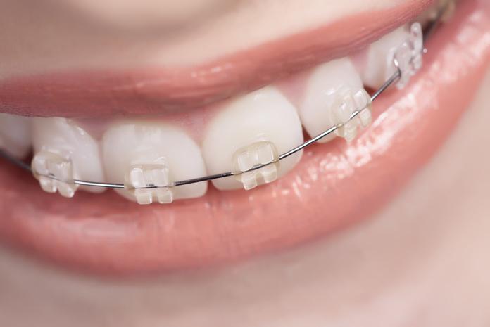 Ortodoncia fija : Especialidades  de Clínica Dental Baviera