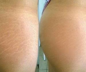 Enfermedades piel, cabello y uñas