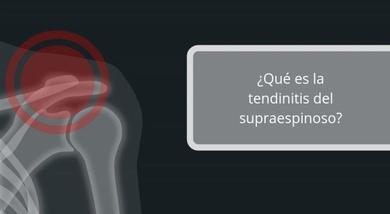 Tratamiento de la tendinitis