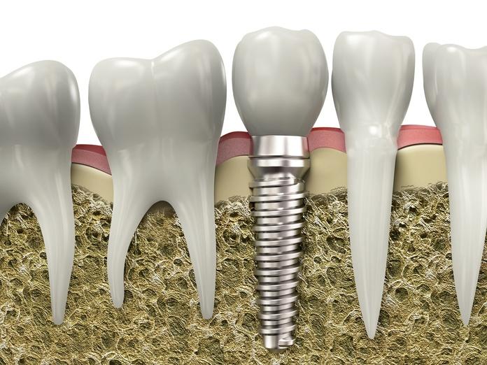 Implantes: Servicios de Iessodent