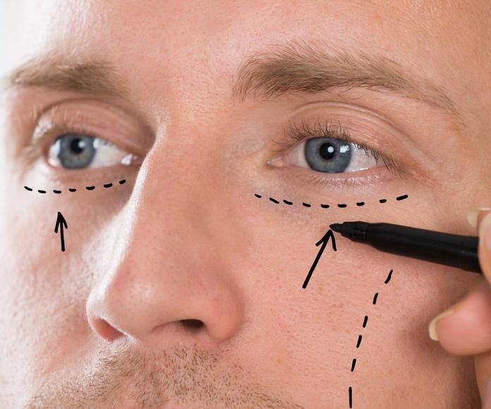 Peeling químico facial y corporal: Tratamientos de Centro de Medicina Estética  Mery Vázquez