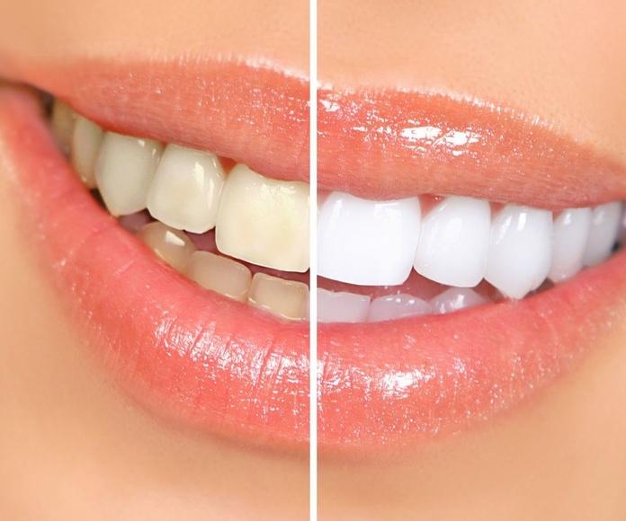 Clínica dental El Queixal Del Seny en Vilafranca del Penedès  especialistas en blanqueamiento dental Zoom
