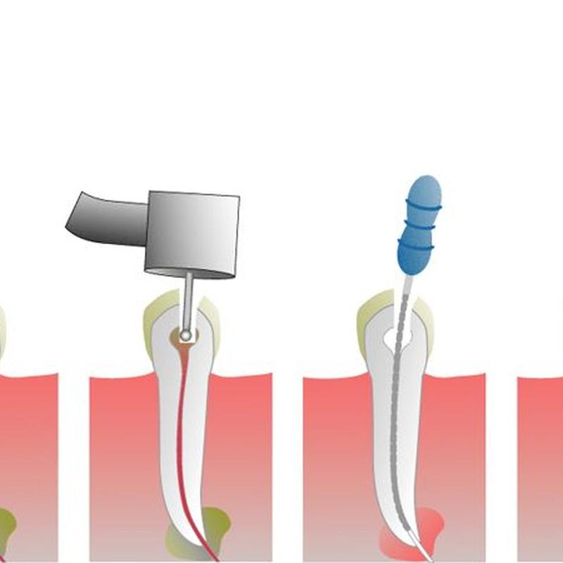 Endodoncia: Especialidades de Clínica Dental Virgen de la Victoria. Dr. Leopoldo Hernández