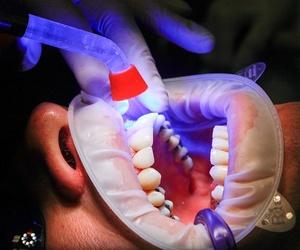 Preguntas y respuestas sobre las endodoncias