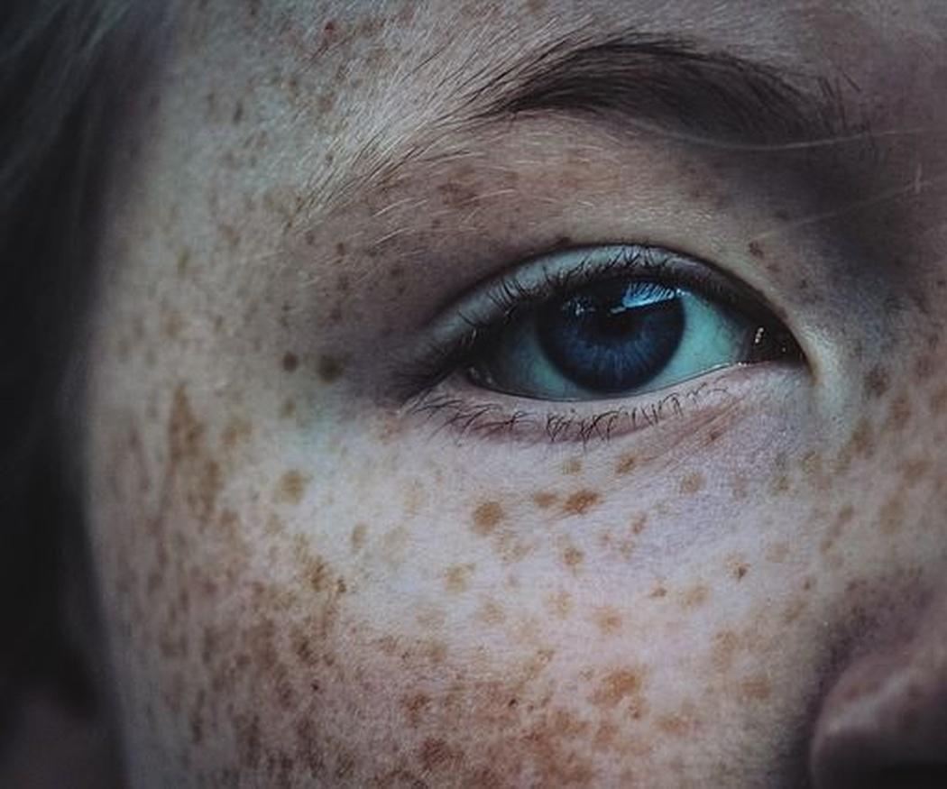 Las verrugas comunes, los lunares en la piel y cómo evitarlos