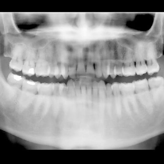¿Qué es la ortopantomografía?