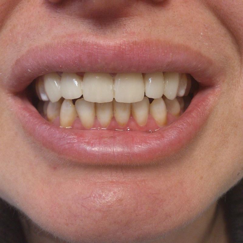 Carillas porcelana: Tratamientos de Clínica Dental Tucán