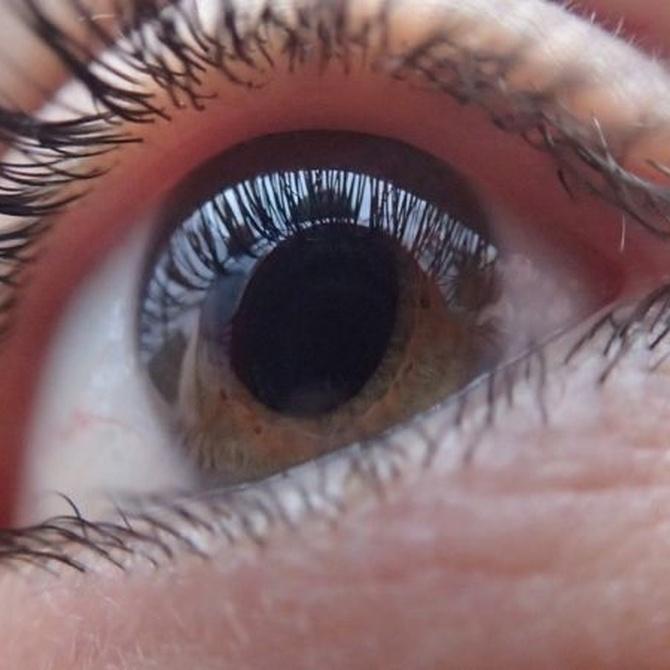 Sobre el riesgo de sufrir glaucoma