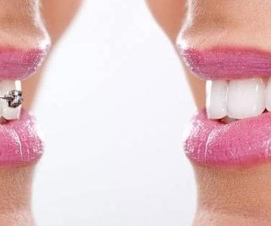 Ortodoncia en Ribadesella