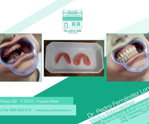 Dentistas en Puerto Real (Cádiz )