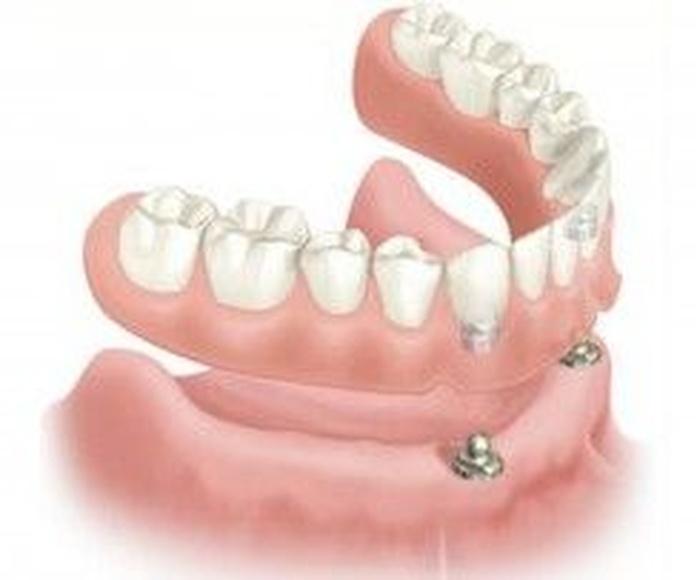 Protesis bucodentales: Tratamientos de Cliesdent Clínica de Especialistas Dentales - Nueva Dirección!