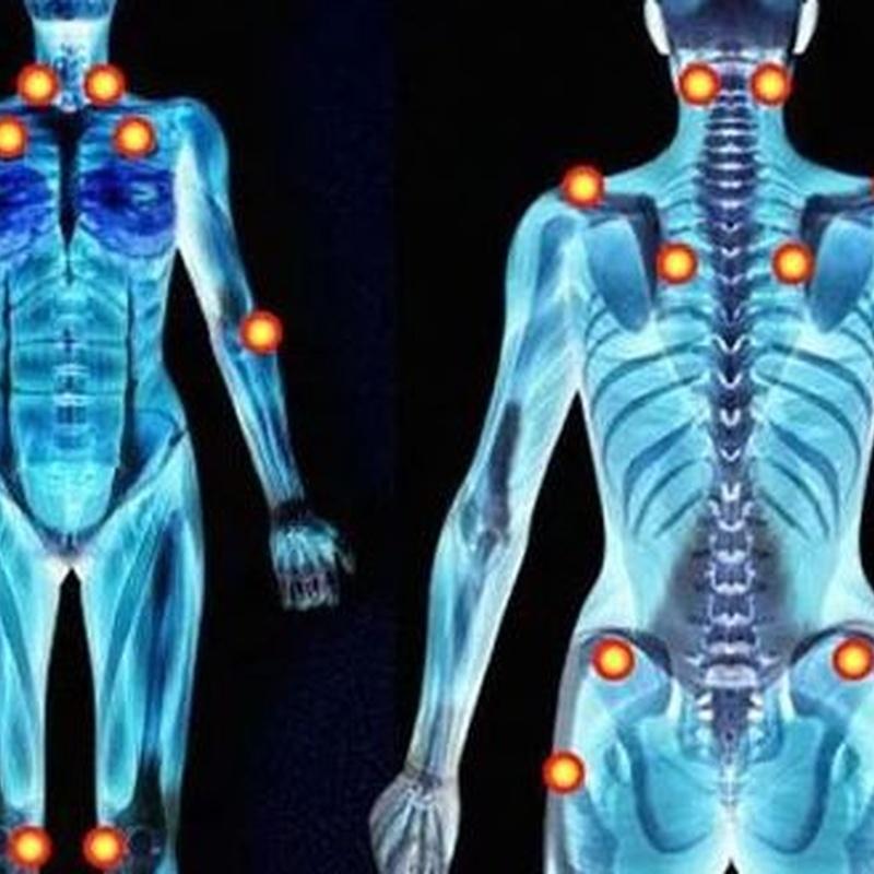 Fibromialgia: Síntomas y Problemas of Quiropràctic Manresa