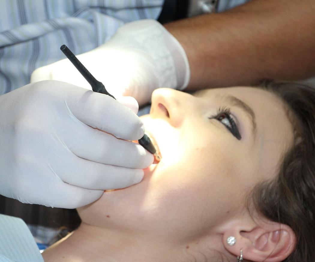 Cuidados básicos para el implante dental