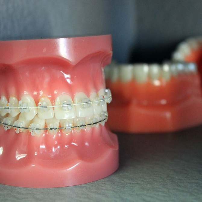 Los beneficios para la salud de las ortodoncias