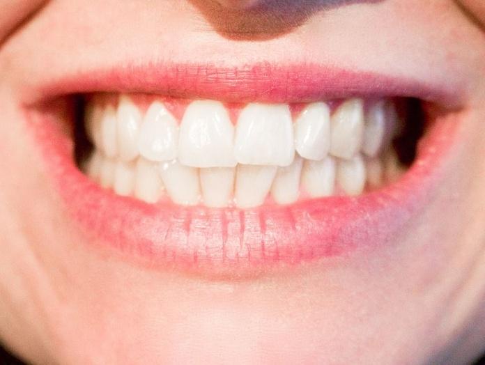 Ortodoncia: Tratamientos dentales de Sanadent