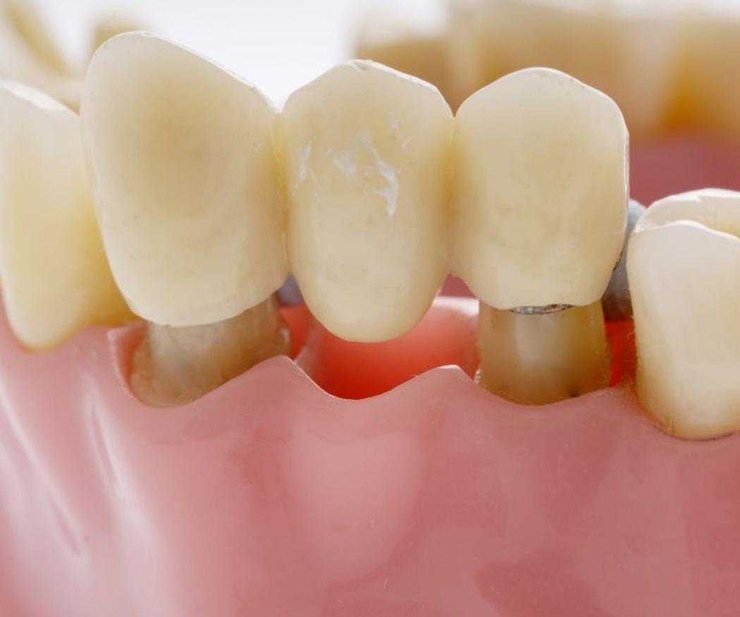 Qué es un puente dental fijo