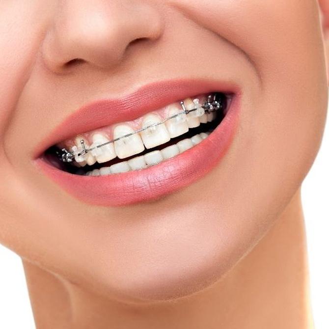 ¿Influye la edad en los resultados de la ortodoncia?