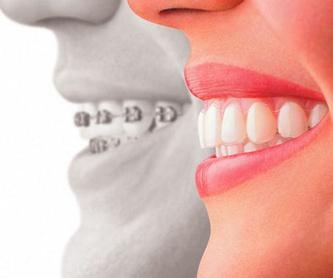 Prótesis dental removible: Tratamientos de Clínica Dental Dr. de la Torre