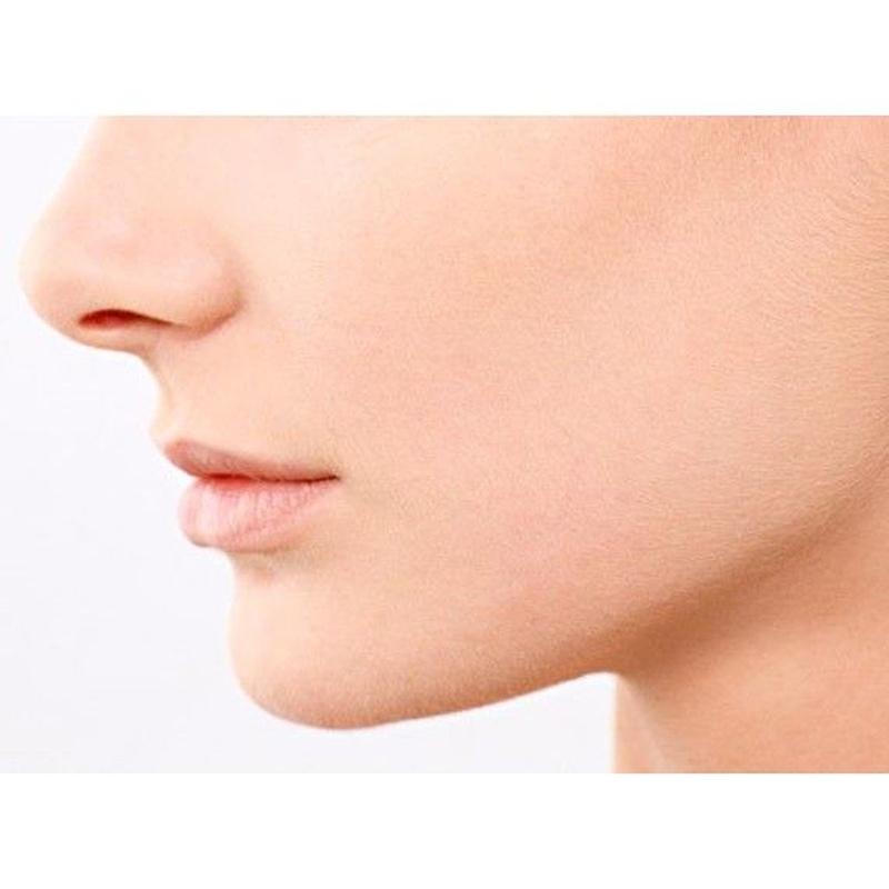 Relleno facial y de labios: Tratamientos de Clínica Dental Virgen del Pilar