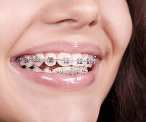 Ortodoncias en Vicalvaro