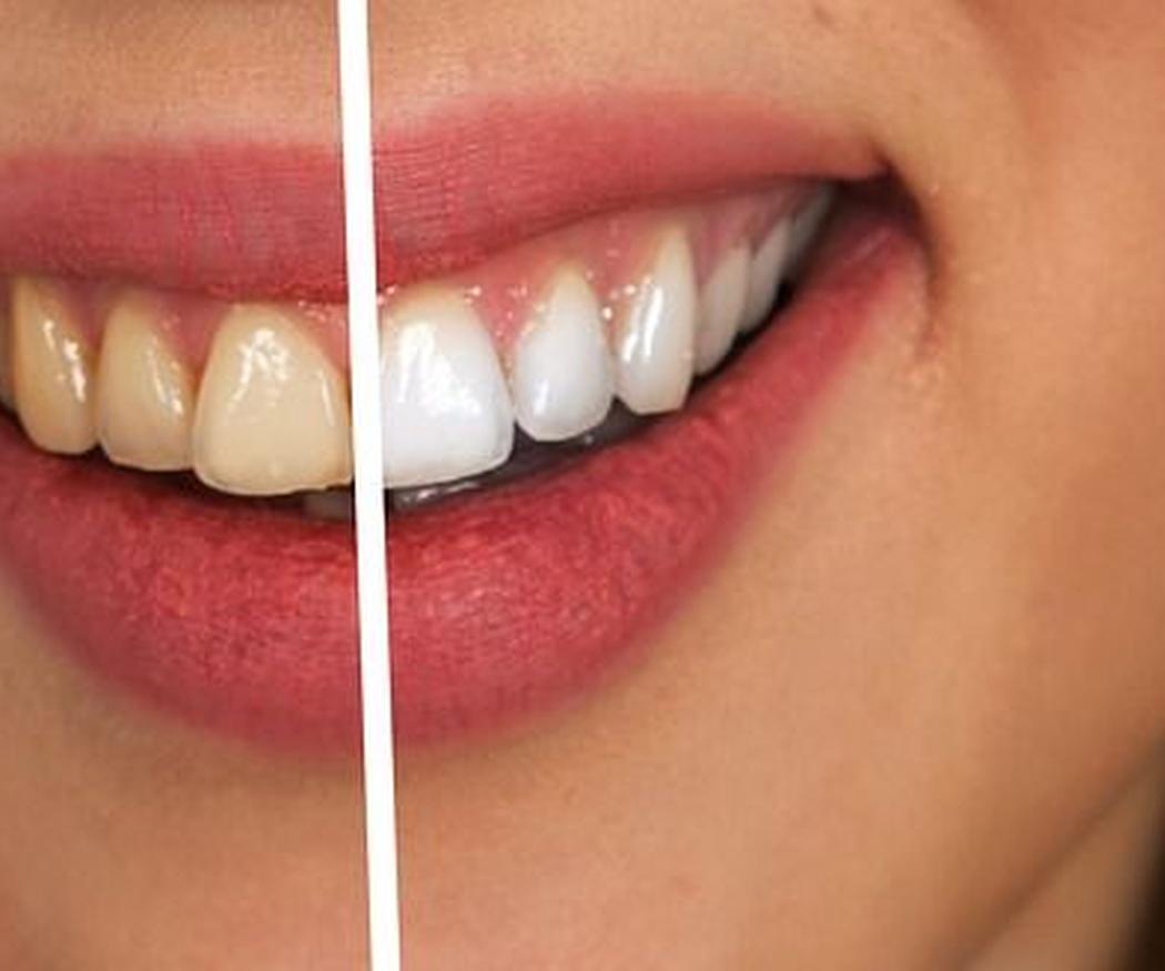 Cómo sacar el máximo partido a tu blanqueamiento dental