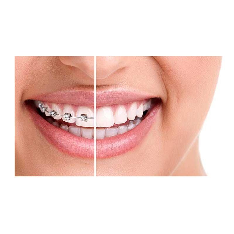 Ortodoncia: Servicios de Dental Implantes