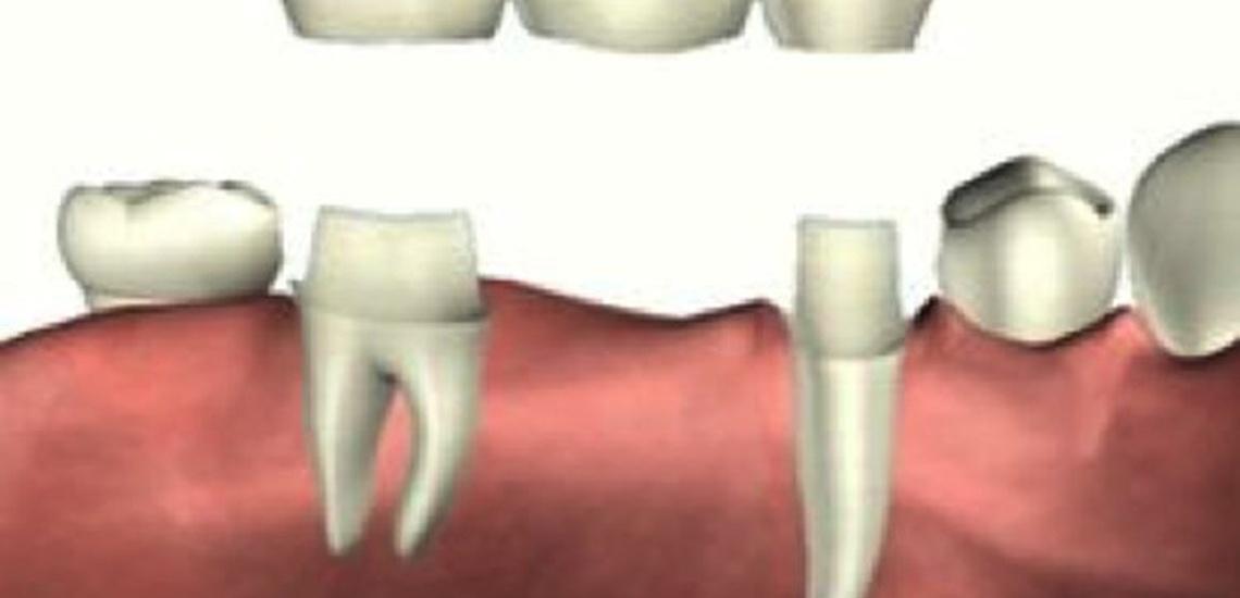 Prótesis dental en Gava