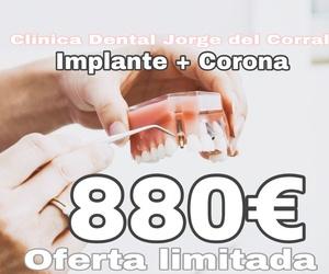 implante dental,hortaleza,canillas,barajas,canillejas,san blas,