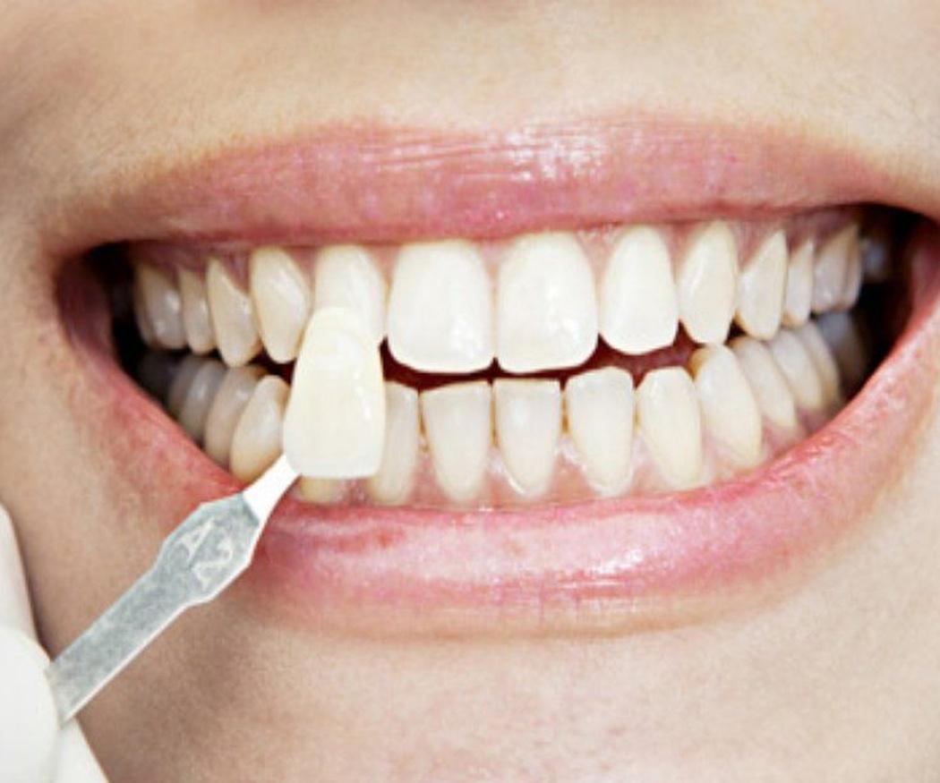 ¿Qué son las coronas dentales?