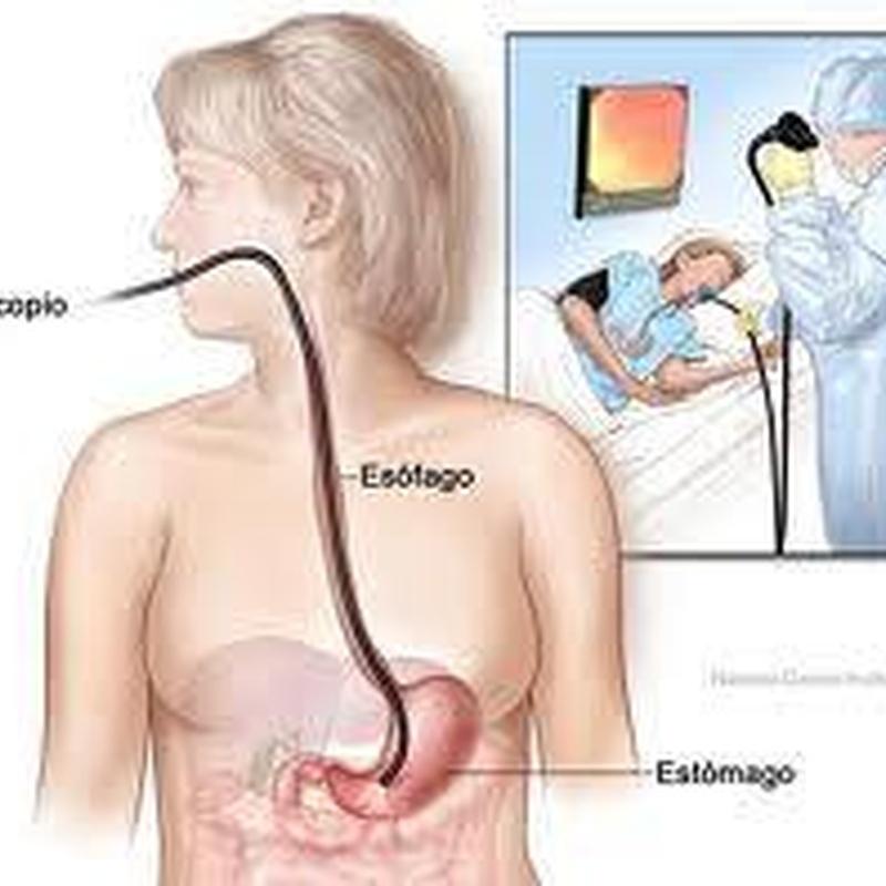 Endoscopia: Tratamientos de Clínica Merello
