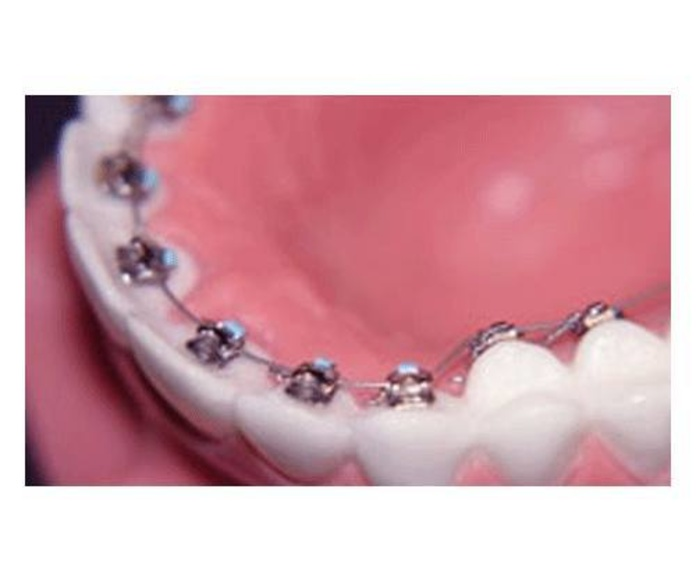 Ortodoncia Lingual: TRATAMIENTOS de C.E.O. Dras. Travesí