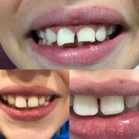 Odontopediatría: Tratamientos y personal  de Clínica Dental Molí