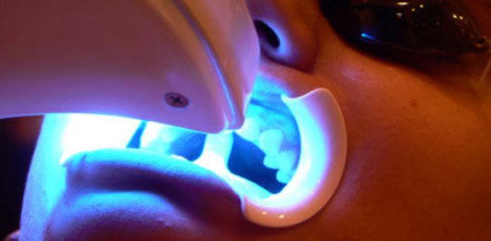 Blanqueamiento dental: Tratamientos de Clínica Dental Fortaña-Giménez