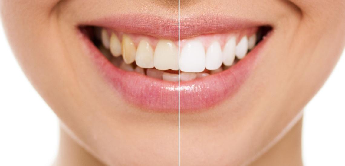 Tratamientos de estética dental e implantes dentales n Trujillo