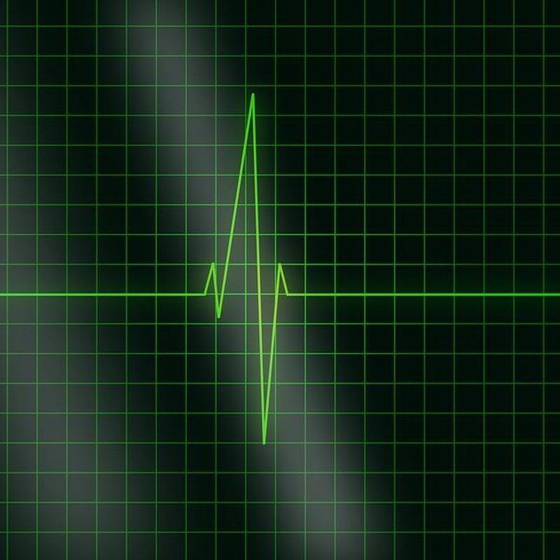 Electrocardiografía: Catálogo de Clínica Veterinaria Los Galgos 928 252685 -  Peluquería Los Galgos 928 201156