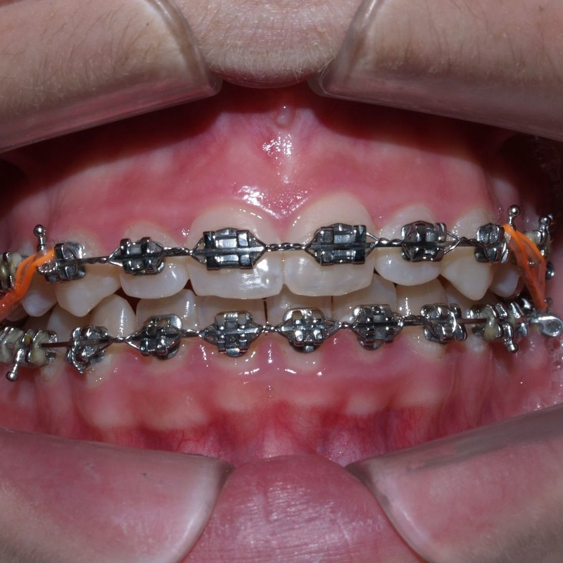 Tratamiento ortodóncico convencional: Servicios de Vicálvaro Dental - Clínica Dental