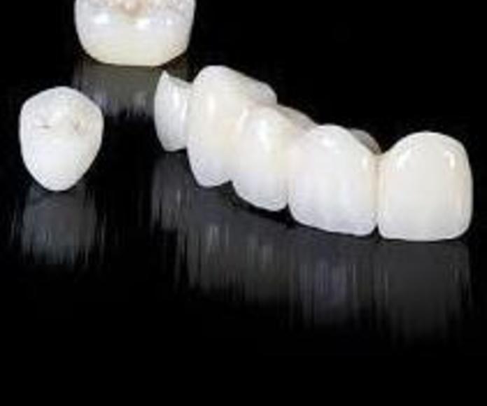 Prótesis zirconio: Tratamientos de Dentalart