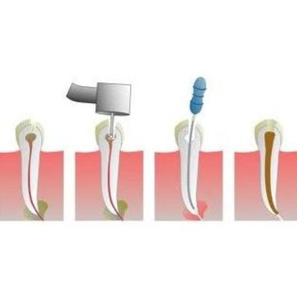 Endodoncias: Tratamientos de Clínica Blanco Dental }}