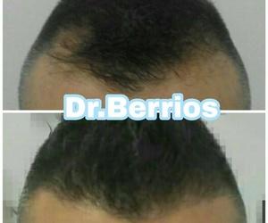 Diagnóstico de la alopecia