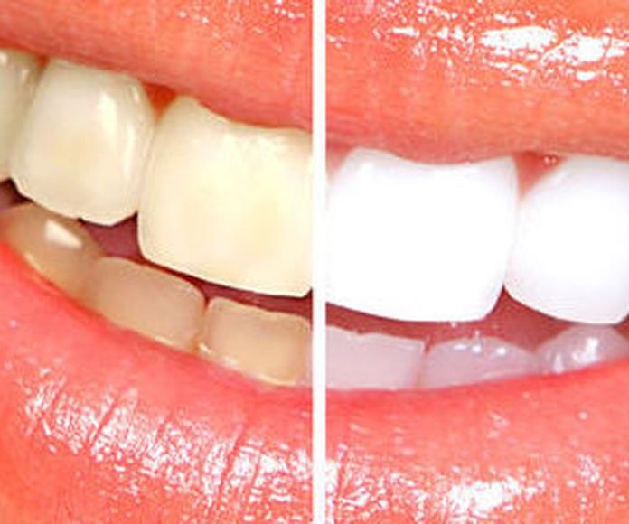 Blanqueamientos: Tratamientos de Clínica Dental Les Mèlies