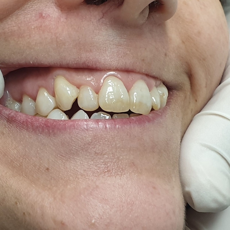 Después del tratamiento Estomatitis herpética Clínica Dental Dr. Rafael Menéndez