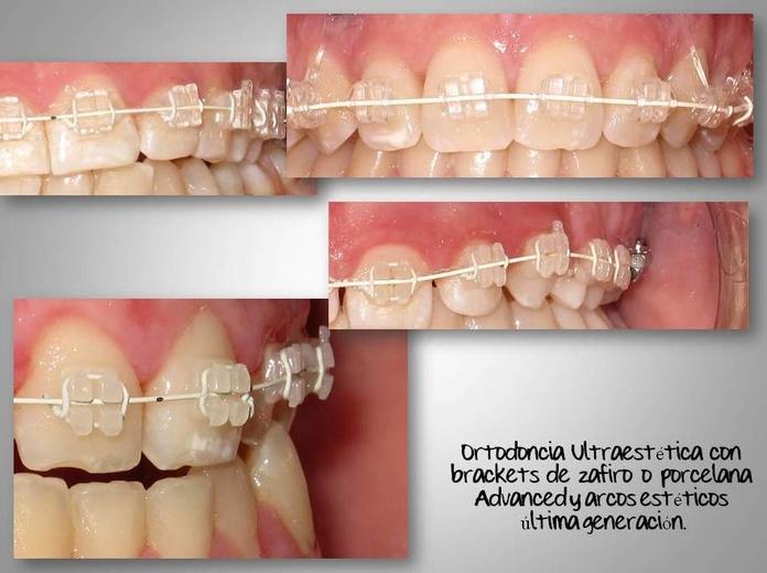 Ortodoncia Estética Baza