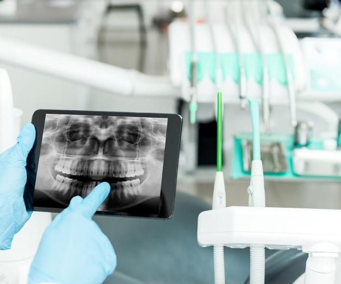 Aparatología: Servicios especializados de Centro Estético Dental García Marí Tenerife
