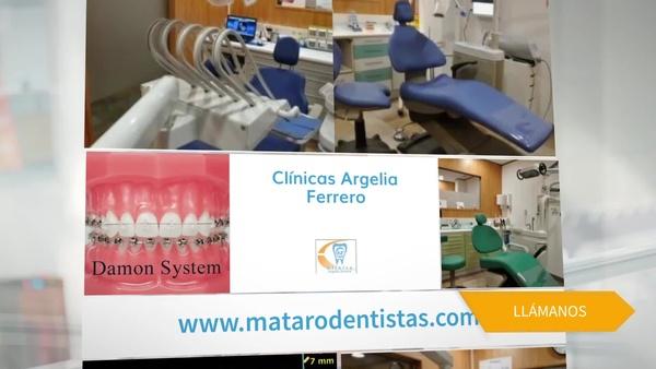 Dentistas especializados en Mataró en la Clínica Argelia Ferrero, soluciones eficaces para tu boca