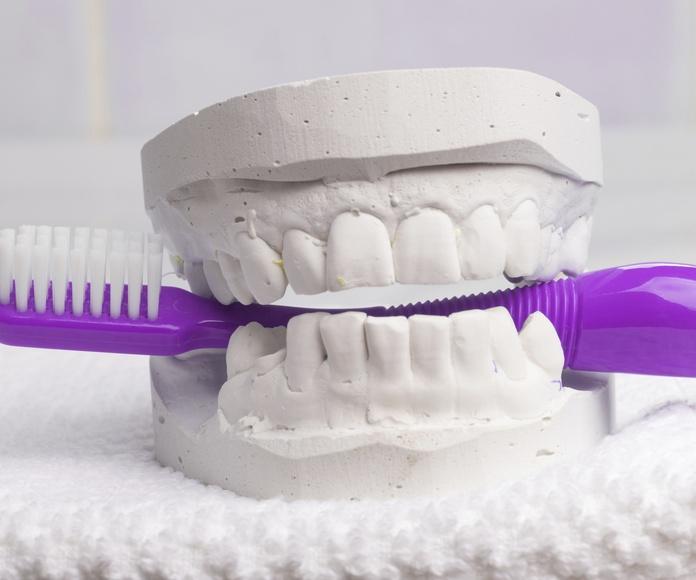 Prótesis fija y removible: Tratamientos de Clínica Dental López Olivas