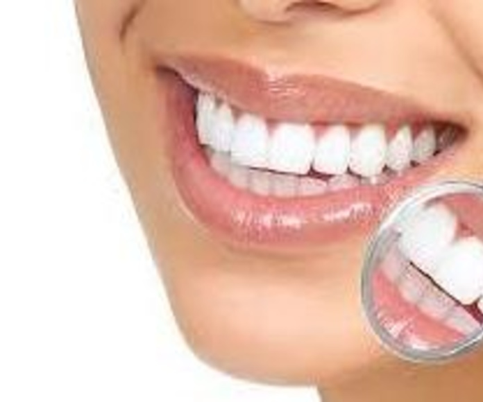 Estética dental: Tratamientos  de Clínica Dental Eladio Angulo