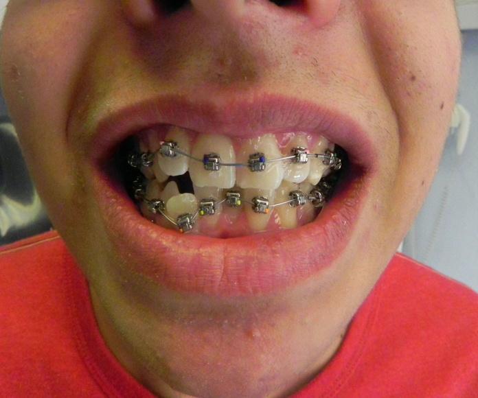 ORTODONCIA FIJA EN MENOS DE 2 AÑOS : Servicios de Clínica Dental Dra. Belkys Hernández Cabrera