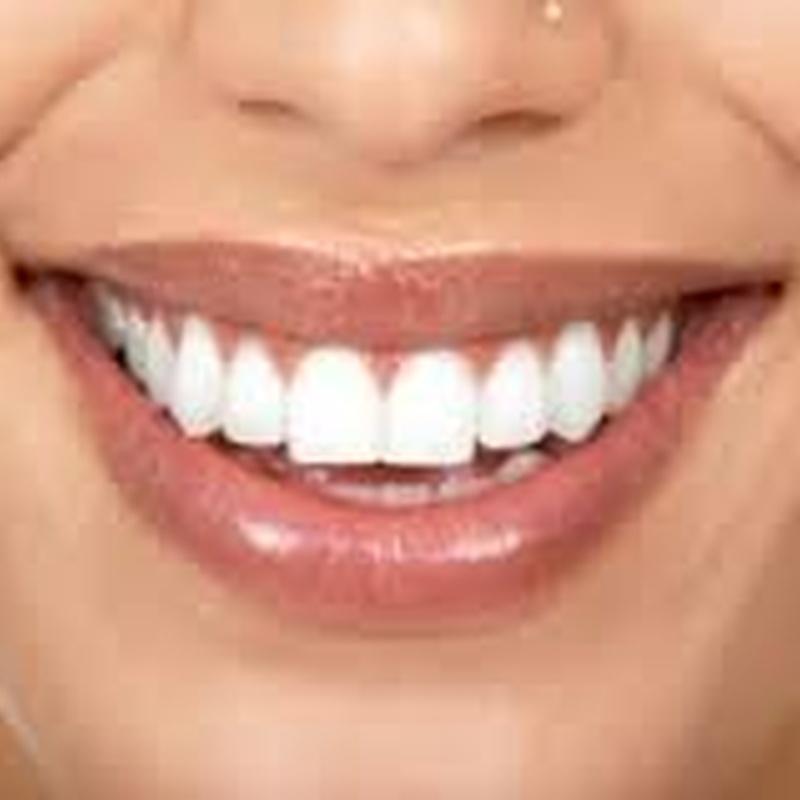 BLANQUEAMIENTOS DENTALES: Catálogo de Policlínica Dental Val de Monterrei